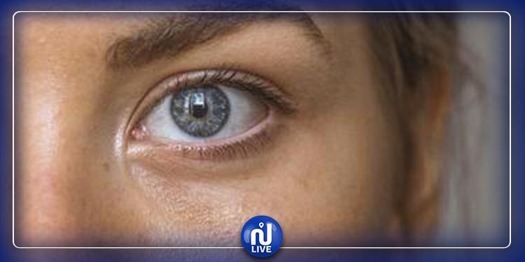 Astuces pour les yeux gonflés au réveil ?